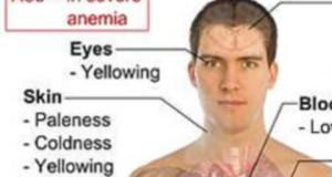 Anemia : alimentazione e rimedi naturali